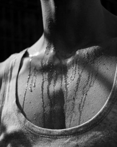 Excessive sweating 3